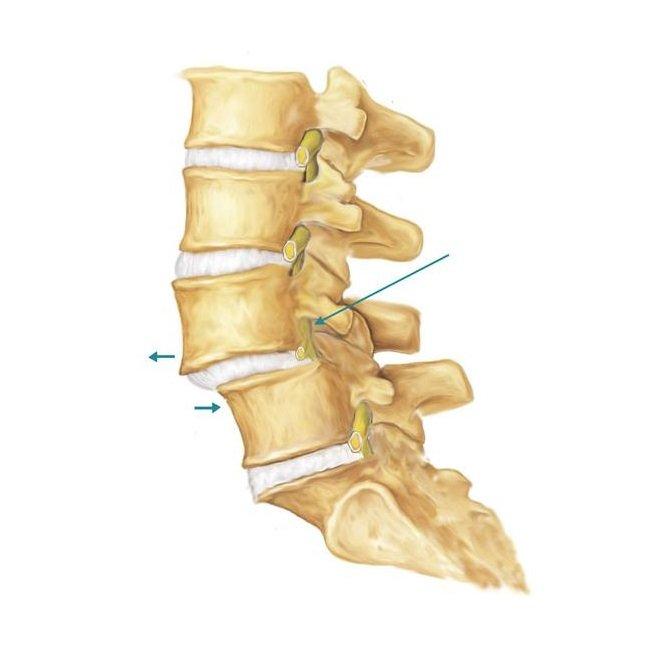 Spondilolistesi lombare anteriore